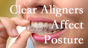Clear aligners influence posture which Minster chiropractic helps.