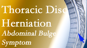 Minster Chiropractic Center treats thoracic disc herniation that for some patients prompts abdominal pain.