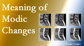 Minster Chiropractic Center sees many back pain and neck pain patients who bring their MRIs with them to the office. Modic changes are often seen.