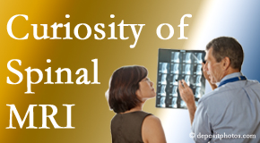 Minster MRIs for spinal stenosis may be revealing…or confusing.
