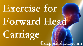 Minster chiropractic treatment of forward head carriage is two-fold: manipulation and exercise.