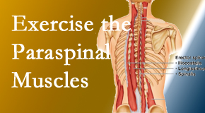Minster Chiropractic Center explains the importance of paraspinal muscles and their strength for Minster back pain relief.