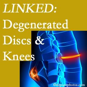 Degenerated discs and degenerated knees are not such unlikely companions. They are seen to be related. Minster patients with a loss of disc height due to disc degeneration often also have knee pain related to degeneration.