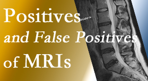 Minster Chiropractic Center carefully chooses when and if MRI images are needed to guide the Minster chiropractic treatment plan.